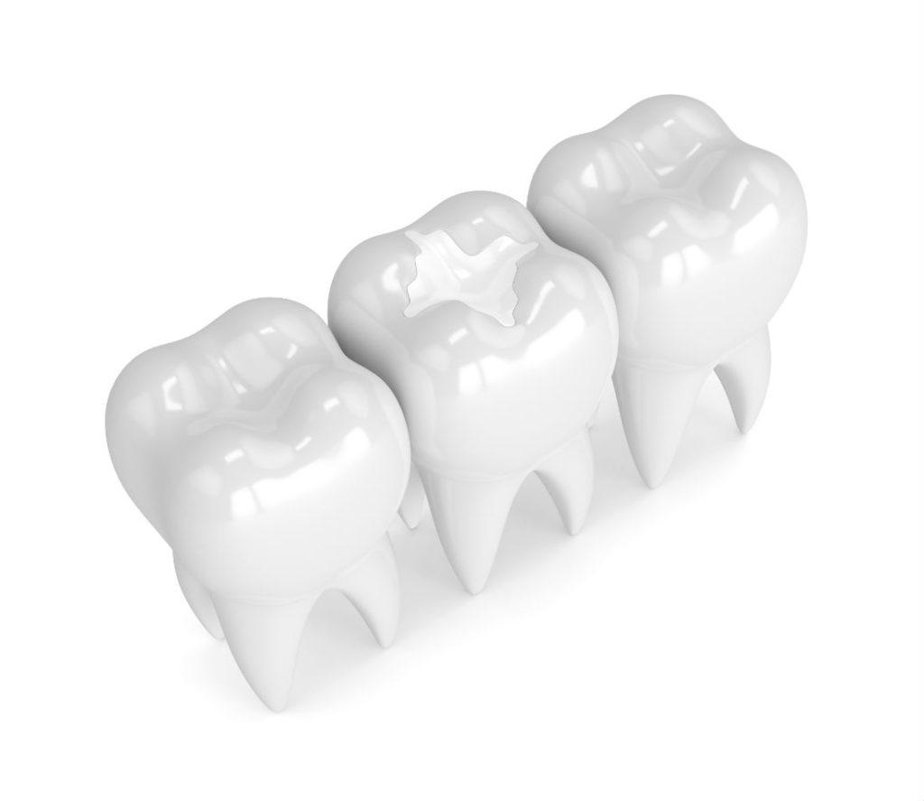 Dental Sealants Burke VA